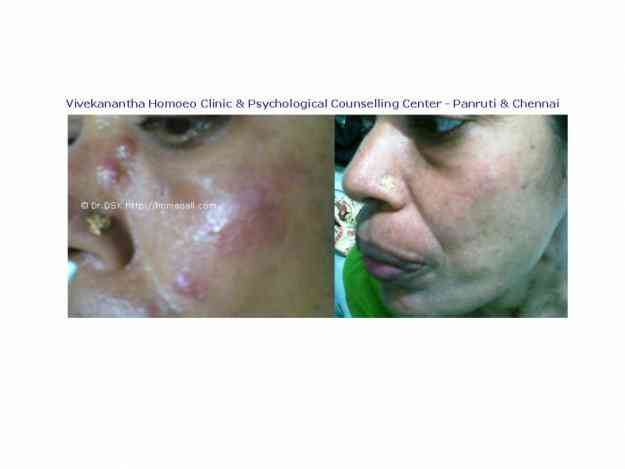 Acne/Pimples Homeopathy Treamtment